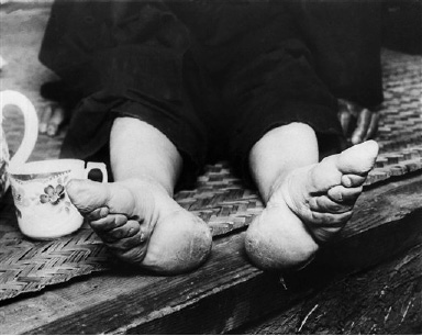 "The national government at Nanking is now trying to stamp out ""bound feet"" which has caused women and children misery for a great number of years. Chinese women attempt to make their feet smaller by binding them in childhood. This is a Sept. 21, 1936 photo. (AP Photo)"